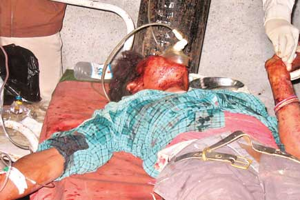 Dhani Ram Chaudhari...injured in an ambush set up by the Maoists in a bridge over Tulbulia Khola near Murgiya Bazaar of Rupandahi's Parhoha VDC