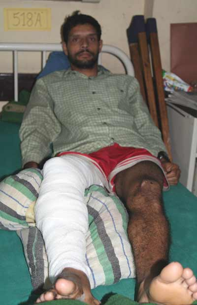 Recovering from Jana Andolan Atrocities