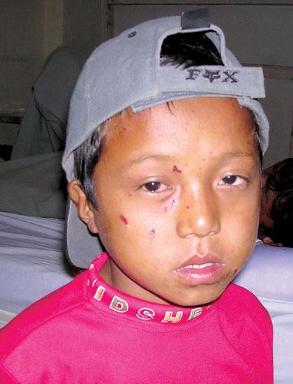 Sanjeev Suwal...socket bomb victim